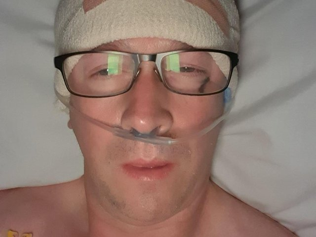 Steve Ryder underwent seven-hour surgery to remove brain tumours discovered after he collapsed during a bike ride