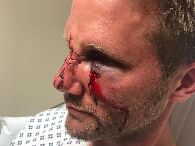 PC Dan Lumley was the victim of a nasty assault while responding to a 999 call.