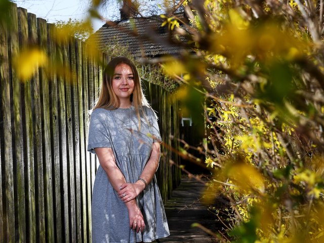 Megan Fitzmaurice pictured at her home at Eastmoor, Wakefield. Photo: Simon Hulme