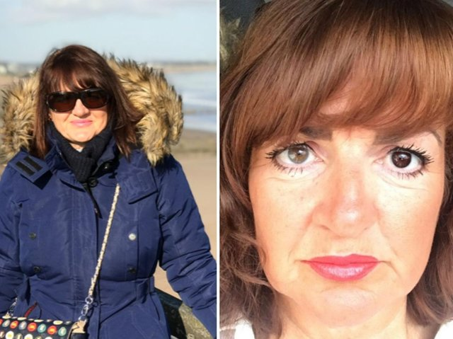 Joanne Hartley has blurred vision and headaches after the surgery