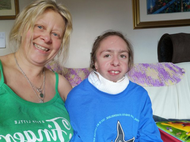 Nicola Slator, 55, from Bradford (left), cares full time for her daughter Rebecca (right), who has a range of disabilities including mandibulofacial dysostosis and autism.